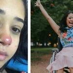 Joven brasileña queda en silla de ruedas por piercing en la nariz
