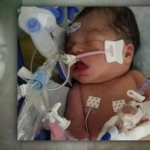 Muere bebé de mujer que fue estrangulada para sacárselo del vientre