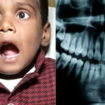 Extraen 526 dientes de la boca de un niño de 7 años en India