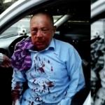 Golpean y provocan la muerte de taxista por no pagar el servicio